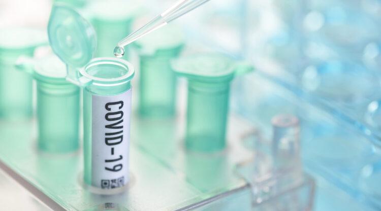 Belgische farma en biotech bundelen de krachten om capaciteit voor coronatesten op te trekken tot ruim 10.000 per dag